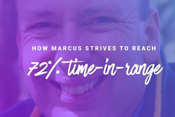 How Marcus strives to reach 72% time-in-range